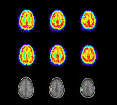 SPECT scans of axial sections through the brain of a two year old during an epileptic seizure (SPL)