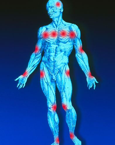 Fibromyalgia produces pain at 11 or more of 18 specific sites