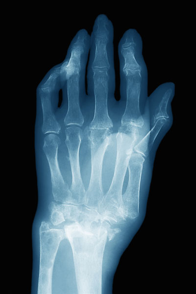 A Colles' fracture may be the first indication of osteoporosis