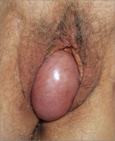 Bladder prolapse may present as a visible protrusion from the vagina
