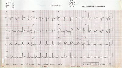 ST segment elevation is characteristic of Brugada syndrome