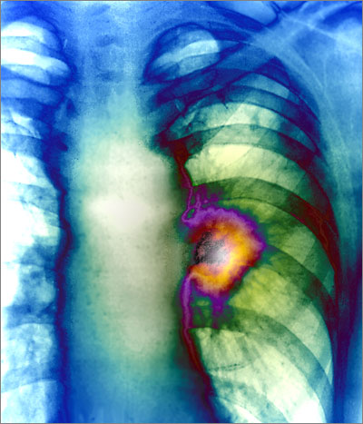 A large hilar mass on x-ray