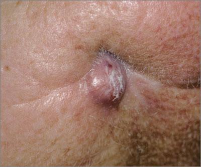 dental sinus
