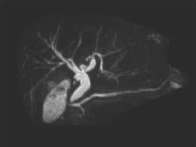 MRCP demonstrating 3D reconstruction of a dilated biliary tree