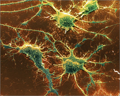 Amyloid plaques (stained green) accumulate in the brains of patients with Alzheimer's disease