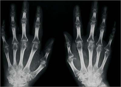 The NICE guidelines recommend early X-rays of hands and feet (Photograph: SPL)