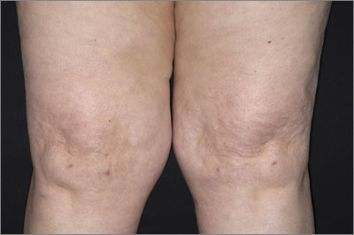 Severely swollen knees: knee replacement surgery may be necessary