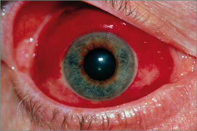 Blood from a ruptured vessel escapes below the conjunctiva (SPL)