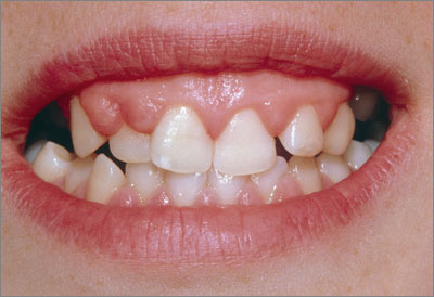 Hyperplasia of the upper gum as a side-effect of long-term phenytoin treatment