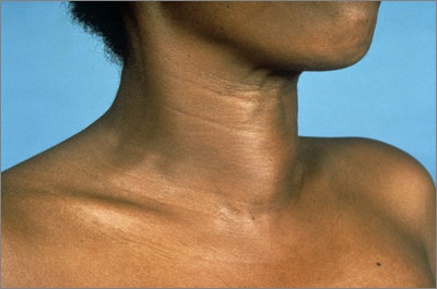 In Hashimoto's thyroiditis may be markedly enlarged, in many cases causing a visible goitre