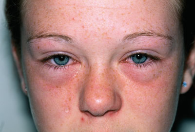 Periorbital oedema and allergic conjunctivitis as a result of hay fever