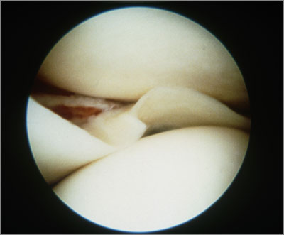 A torn meniscus can be viewed by arthroscopy  (Photo: dr p marazzi/science photo library )