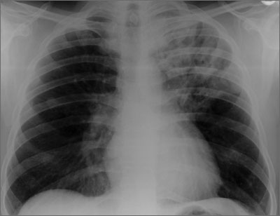 Smear positive pulmonary TB with left apical cavitary infiltrates
