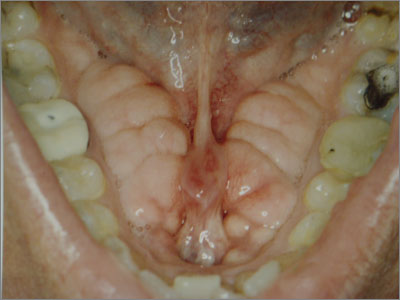 Mandibular tori can be associated with parafunctional habits