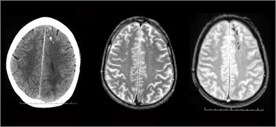 Neuroimaging of a patient suffering TBI from a fall with about one hour's loss of consciousness