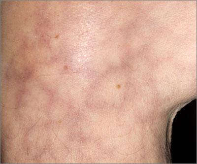 Livedo reticularis (Photograph: Dr Marazzi/SP:)