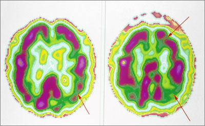 CT scans of Alzheimer's disease (arrows indicate low activity): progression from MCI is not inevitable (BSIP, CAVALLINI JAMES / SCIENCE PHOTO LIBRARY)