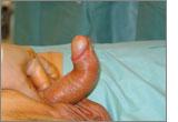 Dorsal deformity of Peyronie's