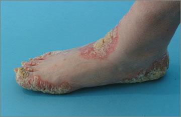 Severe psoriasis