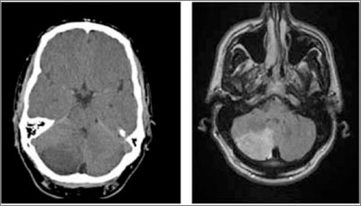 CT (left) and subsequent MRI show a large right cerebellar stroke